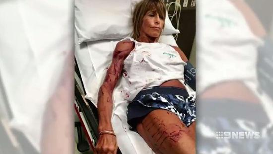 Kangaroo attacks bodybuilder Debbie Urquhart