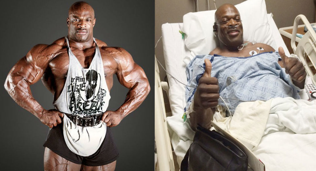Ronnie Coleman, Bodybuilding Legend May Never Walk Again!